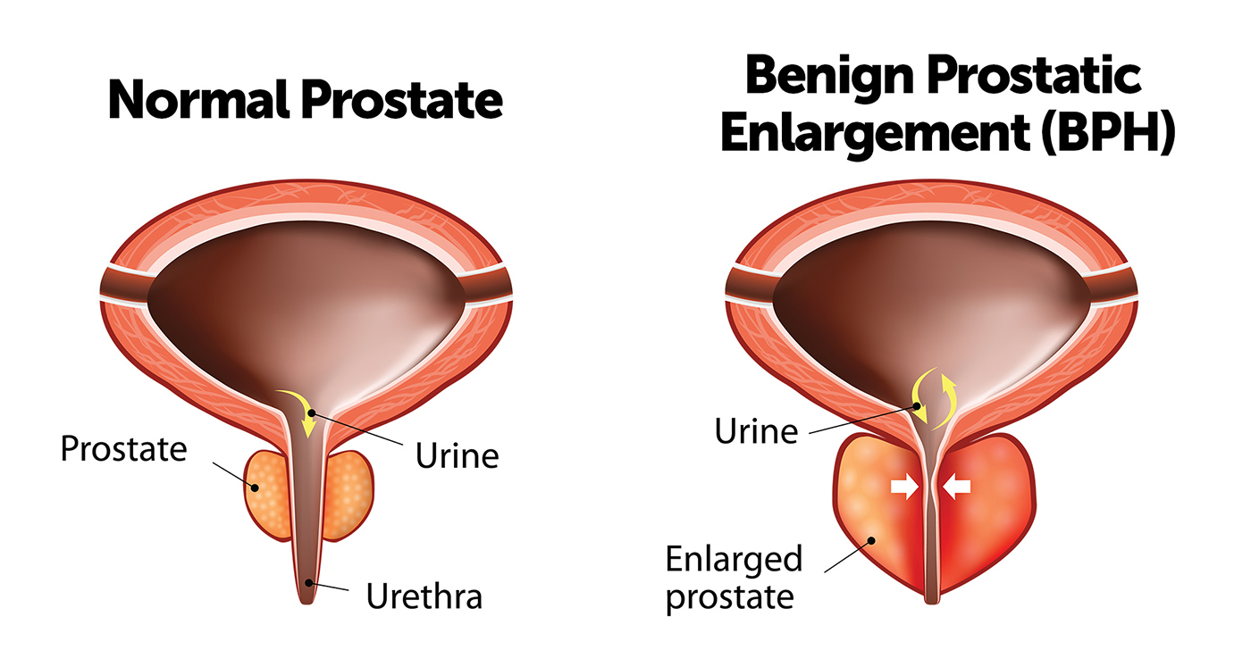 Benign Prostatic Enlargement support